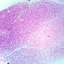 Human Pancreas Microscope Slide, sec., Thin from Carolina Biological Supply Company