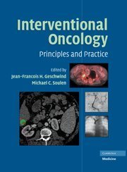 Download By Jean-Francois H. Geschwind - Interventional Oncology: Principles and Practice pdf