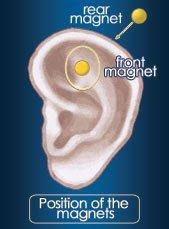 ZeroSmoke Ear Acupressure Therapy to Quit Smoking