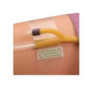 - Hold-n-Place Foley Catheter Holder Adhesive Patch, One Size Fits All