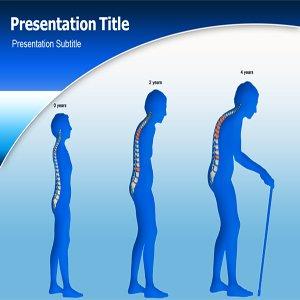 amazon com treatment osteoporosis ppt osteoporosis powerpoint
