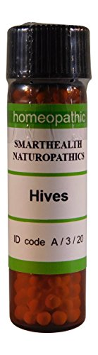 Chronic Hives, Urticaria, Pruritus, Itchy Rash. Oral Homepathic pills.