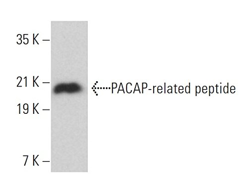 PACAP-related peptide (D-4)