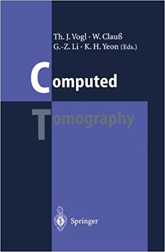 Book Computed Tomography: State of the Art and Future Applications