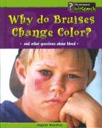 Read Online Why Do Bruises Change Color?: And Other Questions About Blood (Body Matters) pdf
