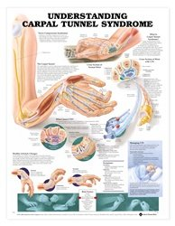 Anatomical Chart Company Understanding Carpal Tunnel Syndrome Anatomical ()