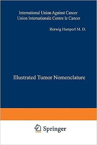 Book Illustrated Tumor Nomenclature: Nomenclature illustrée des Tumeurs / Иллюctpиpobahhaя homehклatypa oпyxoлeӥ / Illustrierte Tumor-Nomenklatur / ... Against Cancer) (English and French Edition)
