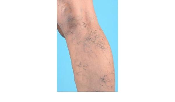 60 ml. v.v. CALEN lavandula. de crema - Un Tratamiento Natural contra las venas visibles.: Amazon.es: Belleza