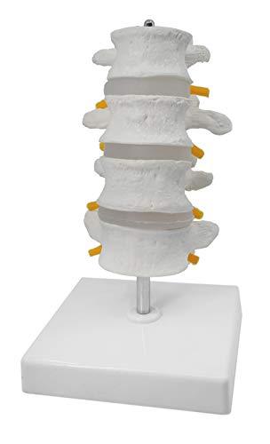 - 4 Lumbar Vertebrae with Nerve Branches Model, 7.25
