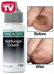 Dr. Blaines Tineacide Antifungal Cream - 1.25 oz, Pack of 5 by Dr. Blaine's Tineacide Antifungal Cream (Image #4)