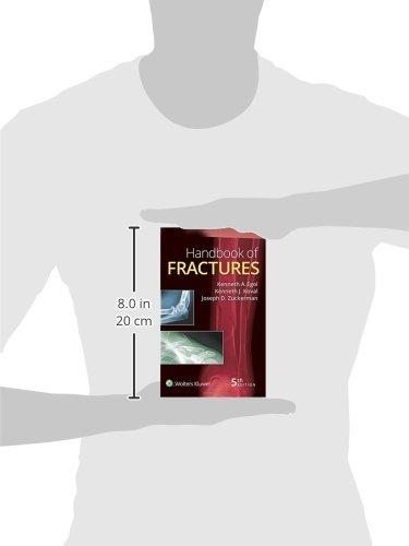 Handbook of Fractures - http://medicalbooks.filipinodoctors.org