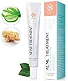 Best Acne Creams - Acne Cream with Aloe and Ginseng - Advanced Review