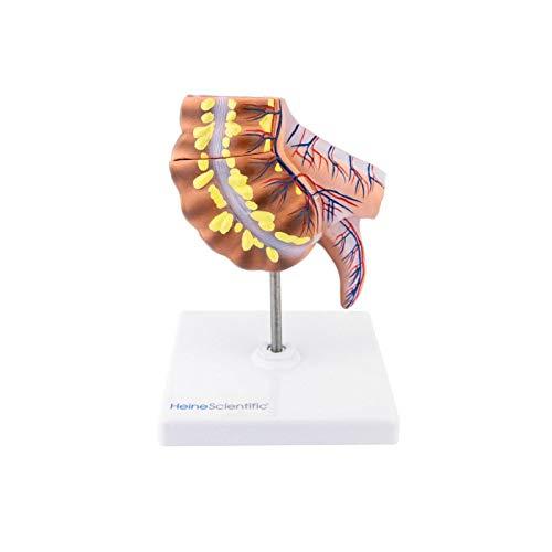 HeineScientific Appendix und Caecum-Modell, 2 teilig