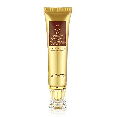 remove acne cream - 5