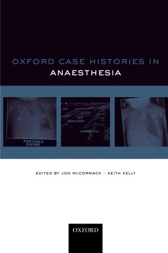 Oxford Case Histories: Anaesthesia