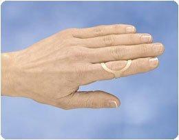 Sammons Preston Oval-8 Splints-single Ring (Size 15)