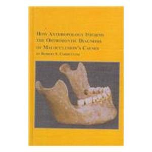 How Anthropology Informs the Orthodontic Diagnosis of Malocclusion's Causes (Mellen Studies in Anthropology, 1) by Edwin Mellen Pr