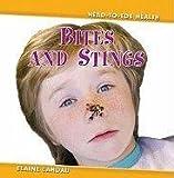 Bites and Stings, Elaine Landau, 076142850X