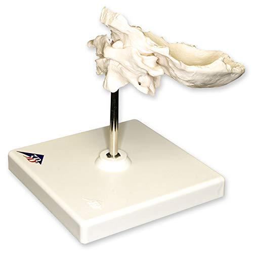 Human Individual Bones Atlas and Axis with Occipital (Teaching Quality - Bone Skull Occipital