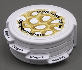 Osteoporosis Anatomical Disk Set Classroom Education Model CEM by GPI Anatomicals