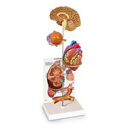 Hypertension Model Set (Hypertension Set Model)