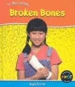 Broken Bones (Heinemann First Library)