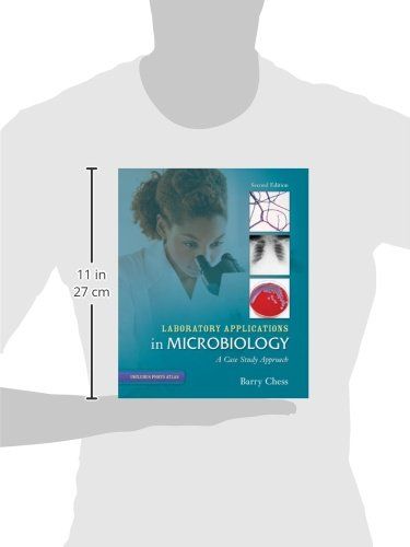 essential laboratory techniques 31 technique of microangiography akihiro fukui microangiography is an essential method of evaluating blood circulation in several tissues.