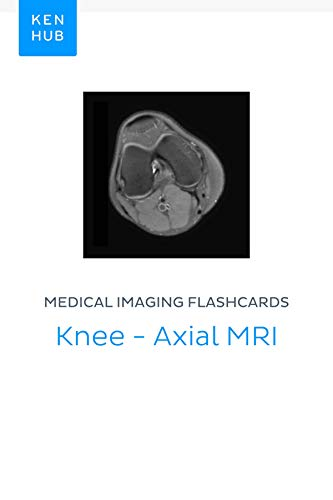 Medical Imaging flashcards: Knee - Axial MRI: Learn all bones, ligaments, muscles, mri, arteries, nerves and veins on the go (Kenhub Flashcards Book 54) (Anatomy Of The Knee Muscles And Ligaments)