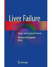 Liver Failure: Acute and Acute on Chronic