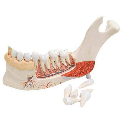 VE290 - Description : Half Lower Jaw with 8 Diseased Teeth - 3B Scientific Advanced Half Lower Jaw with 8 Diseased Teeth - Each