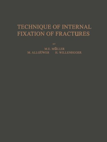 Technique of Internal Fixation of Fractures