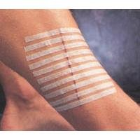 3M Steri-Strip Skin Closures, Reinforced, 1/2'' x 4'', 6/Pk, 200Pks/Cs