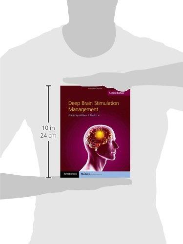 Deep Brain Stimulation Management - http://medicalbooks.filipinodoctors.org