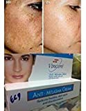 Best Melasma Treatment Cream Reduces Age Spots, Helps Repair Sun Damaged Skin, Fade