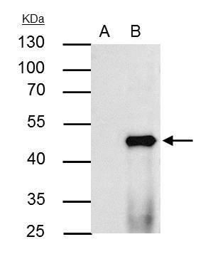 Amazon.com: ppar Alpha antibody – peroxisome proliferator ...