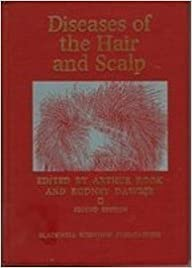 Diseases of the Hair and Scalp