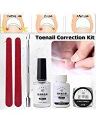 - Ingrown Toenail Corrector Kit, Pedicure Tools, LuckyFine 6pcs Nail File Elastic Patch Straightening Clip Nail Glue Toe Nail Care Pedicure Tool