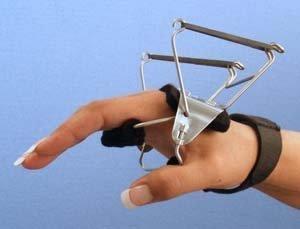 (Bunnell Reverse Knuckle Bender Splint, Size: M)