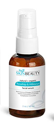 Rosehip & Hibiscus Facial Serum with Vitamins A B C E-Skin Lightening Wrinkles Acne (2 oz / 60 ml)