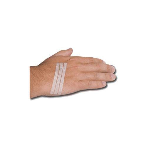 Steroplast Hypoallergen Sterilstrips 3 mm x 7,5 cm (x10) Klammerpflaster