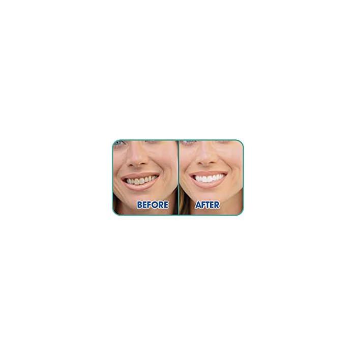 31IMTn31RWS Ultrasonic es el cepillo de dientes con tecnología sónica recomendado para aquellos con problemas de recesión de las encías, ya que es más suave que los modelos de cabeza giratoria. A diferencia de los cepillos de dientes eléctricos tradicionales, los cepillos de dientes sónicos realizan movimientos oscilantes que permiten cepillarse verticalmente según las recomendaciones de los dentistas. El ultrasonido se caracteriza por las cerdas de vibración rápida que limpian los dientes en lugar de un movimiento circular, lo que hace que sea más suave para las encías, ya que elimina la placa dental y los restos de comida.