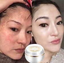 (Night cream) Singapore Whitening face Cream Moisturizer Cream Anti aging cream Freckle Removal Skin Lightening Whitening Cream Goji berry cream Reduce wrinkles Fine white skin 30g.