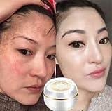 (Night cream) Singapore Whitening face Cream Moisturizer Cream Anti aging cream Freckle Removal