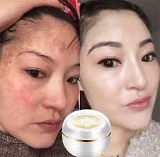 (Night cream) Singapore Whitening face Cream Moisturizer Cream Anti aging cream Freckle Removal Skin Lightening Whitening Cream Goji berry cream Reduce wrinkles Fine white skin 30g. by Singapore Whitening