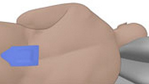 Amazon com: The hydrocolloid pressure sores Patch Tape: Health