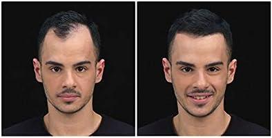Kmax Concealing Hair Fibers – Fibras capilares de ocultamiento ...
