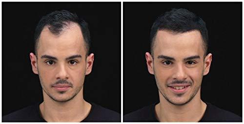 K-Max 25 G NEGRO Polvo de Cabello 100% Natural - Aporta de Volumen, Disimula la alopecia: Amazon.es: Belleza