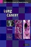 Lung Cancer, Desai, Sujal R., 0521872022