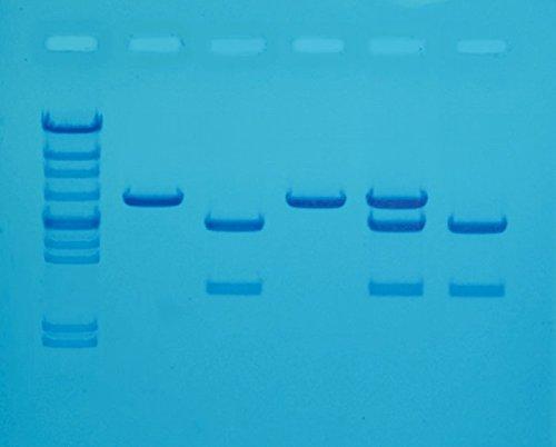 - Edvotek 118 Cholesterol Diagnostics for 8 Gels