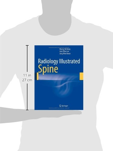 Radiology Illustrated: Spine
